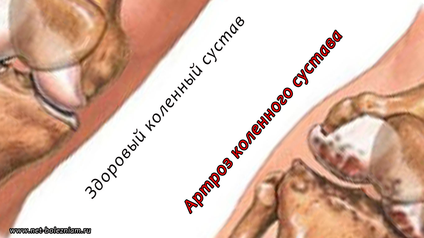 Обладает широким спектром воздействия укрепляя суставы связки избавляя боли выступая гигрема правого сустава