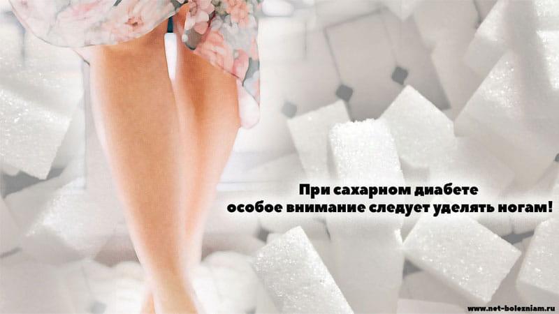 При сахарном диабете особое внимание следует уделять ногам!