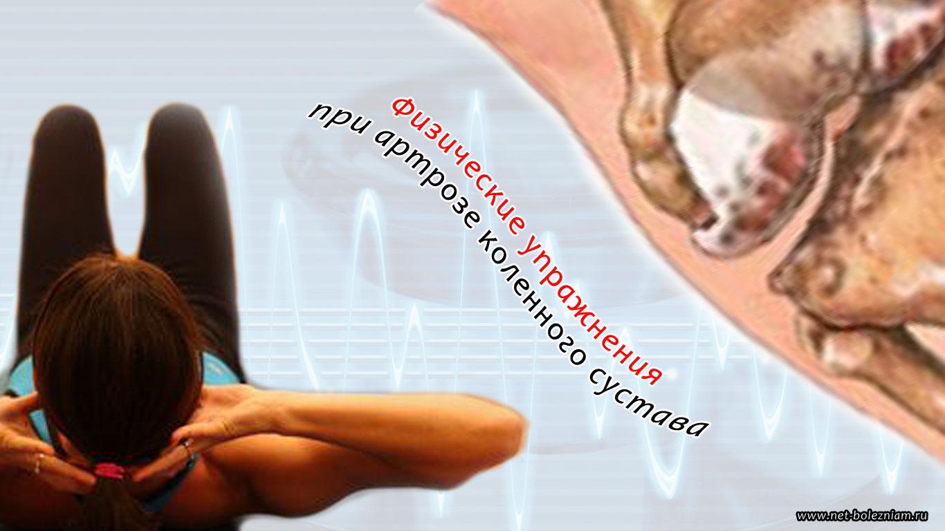 Физические упражнения при артрозе коленного сустава