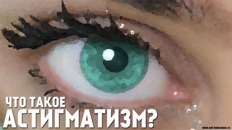 Что такое астигматизм?