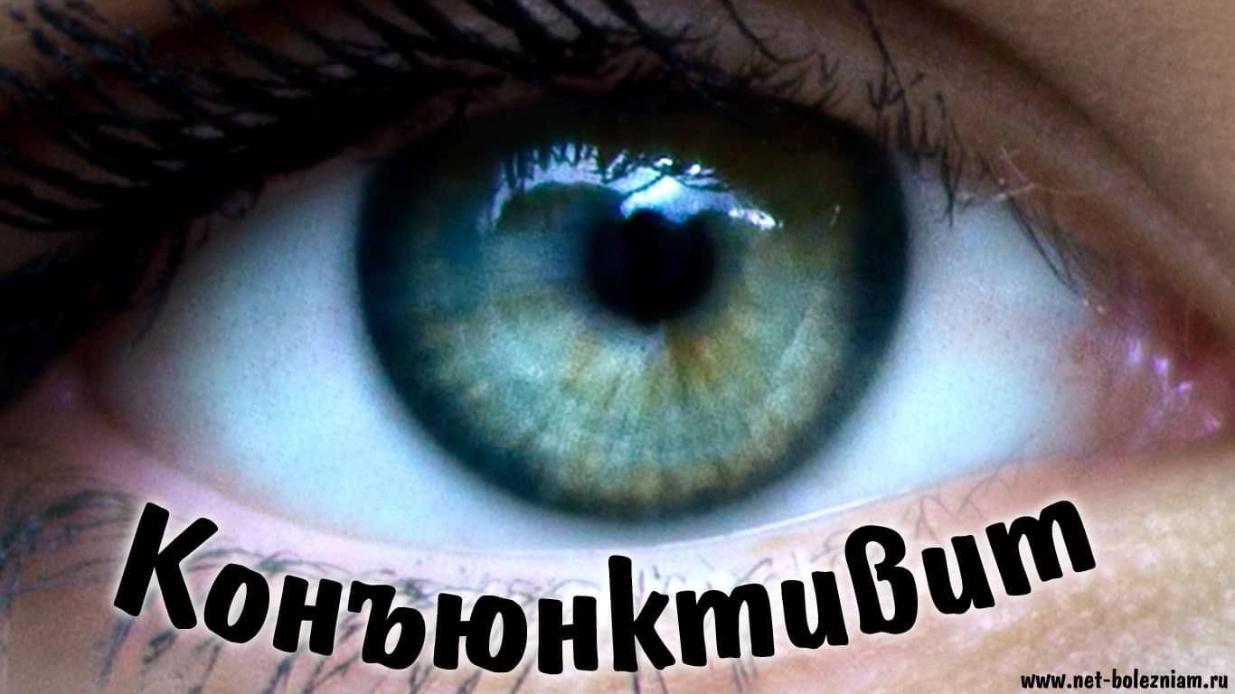 Конъюнктивит - расстройство глаз, характеризующийся воспалением конъюнктивы.
