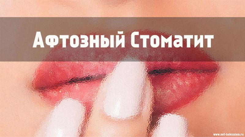 Что такое афтозный стоматит?