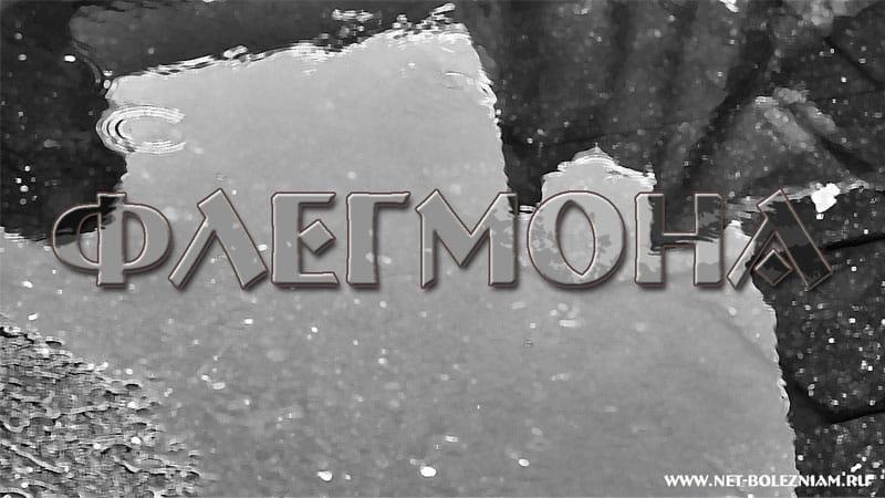 Флегмона - острое гнойное воспаление жировой клетчатки.