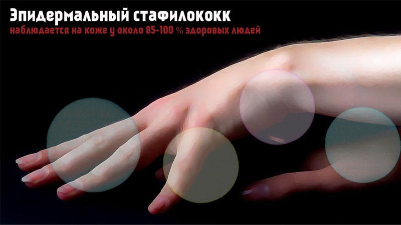 Эпидермальный стафилококк наблюдается на коже у около 85-100 % здоровый людей.