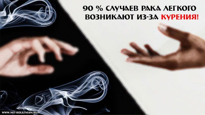 90 % случаев рака легкого возникают из-за курения!