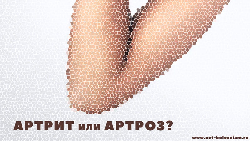 Артрит или артроз?