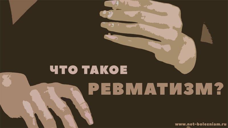 Что такое ревматизм?
