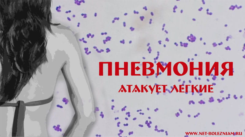 Пневмония - это инфекция легких, которая чаще всего возникает по причине бактерии (пневмококка).